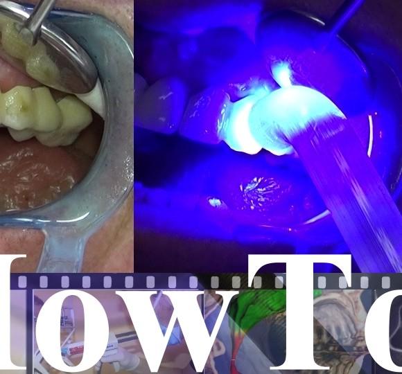 Video-Post auf Youtube Zahnmedizin Live!: How to: Frontzahn-Provisorien in 3 min individualisieren