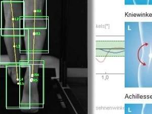 Diagnostik und Korrektur von Fehlbelastungen der Knie und Hüfte